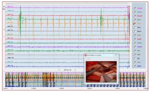 monitoraggio tumore spinale