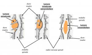 tumori spinali